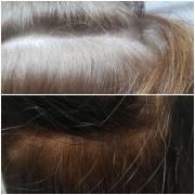 Мезотерапия для волос, город Рязань