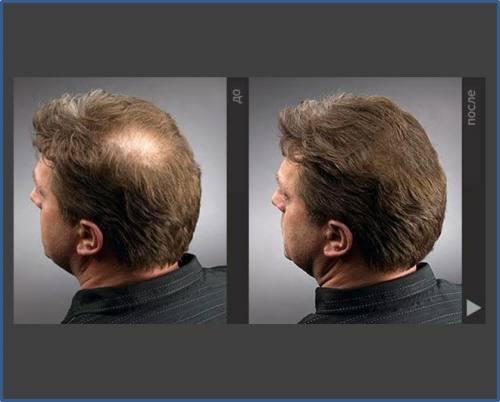 Лосьон для стимуляции роста и восстановления волос., город Рязань