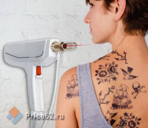 Удаление татуировок лазером, город Рязань
